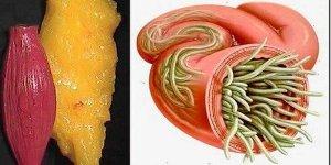 Santé: Évacuez la graisse et les parasites présents dans votre corps grâce à cette astuce puissante