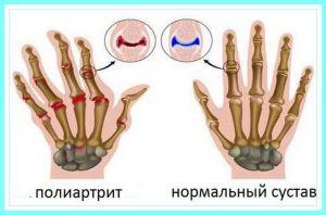 Причины онемения рук