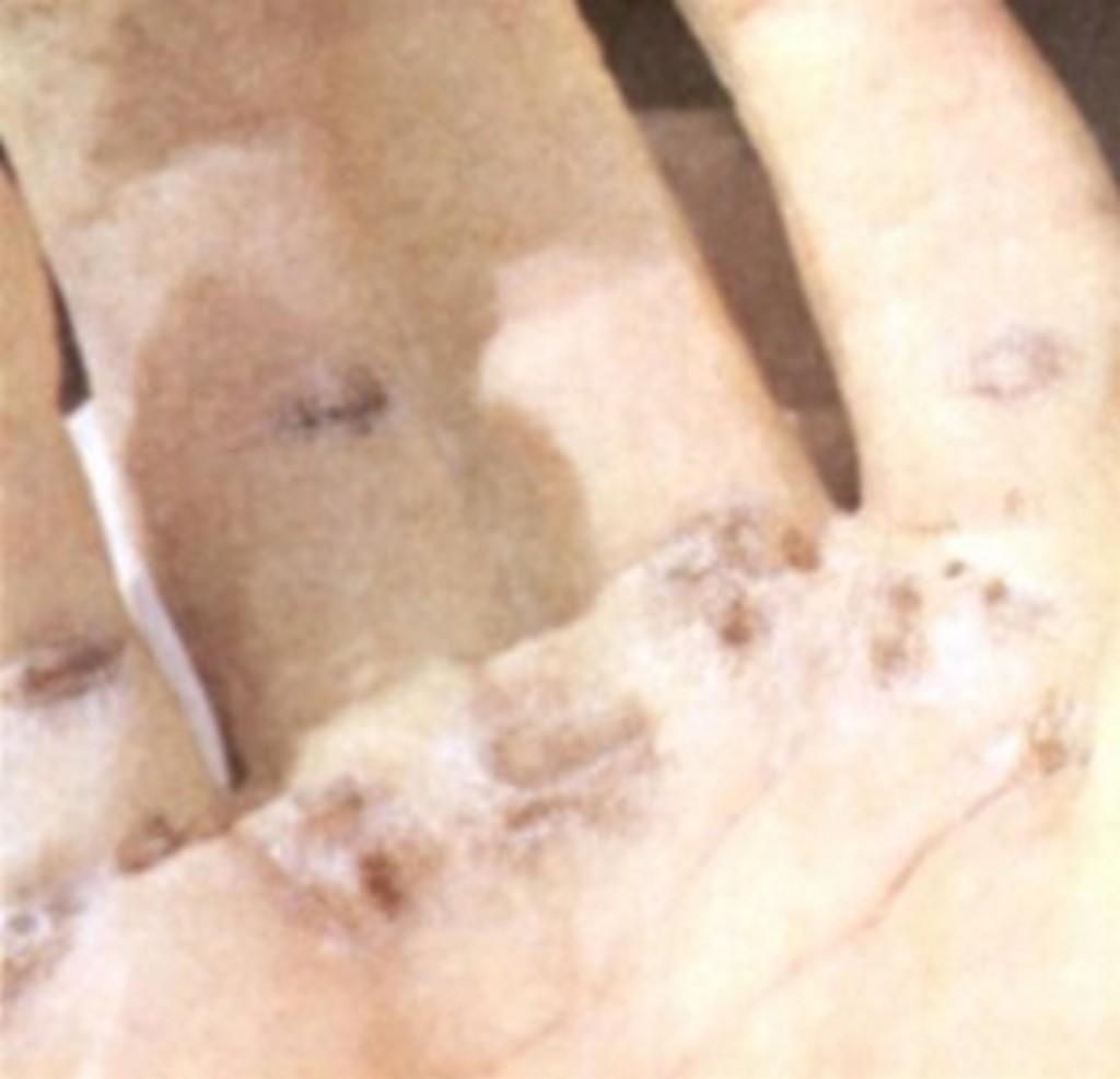 Choque de pegadas na palma