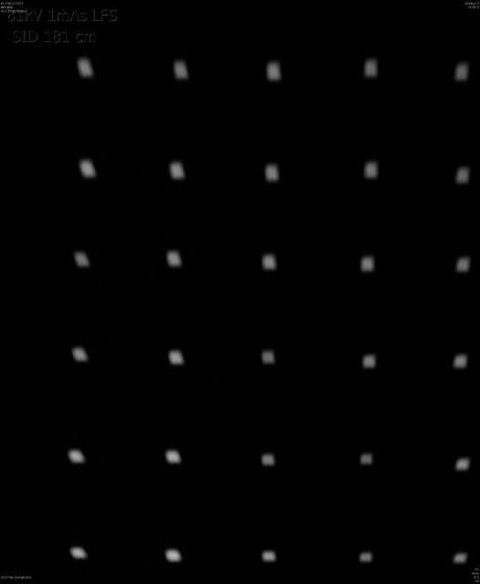 Large focal spot 81 kV 1mAs