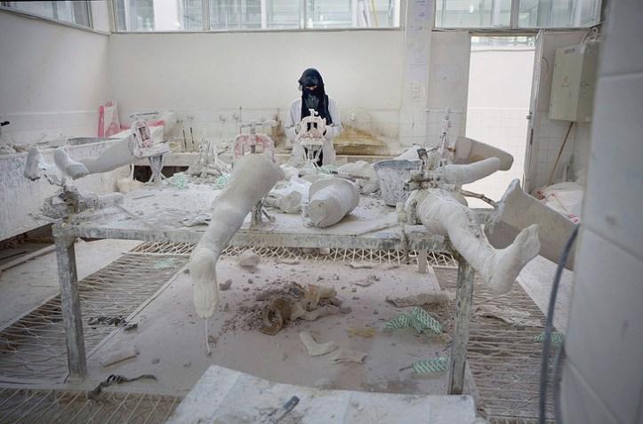 Sanaa-novembre-2017-femme-fabrique-protheses-debut-conflitde-6-000-Yemenites-amputes_0_729_481.jpg