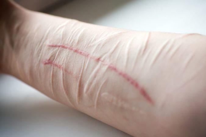 self harm, cutting