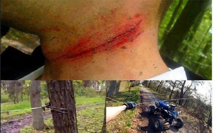 Trampas para ciclistas (3)