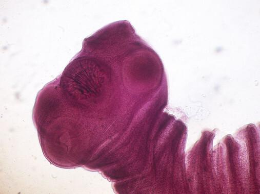 Extremo anterior deTaenia solium, cuyos quistes larvales provocan cisticercosis. /Wikipedia