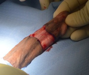 surgical image 2