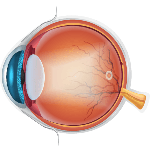 Diagram of lens affected by cataracts
