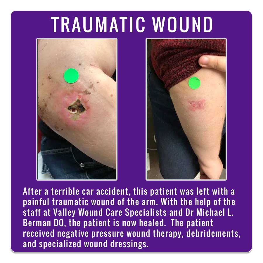 Traumatic Wound