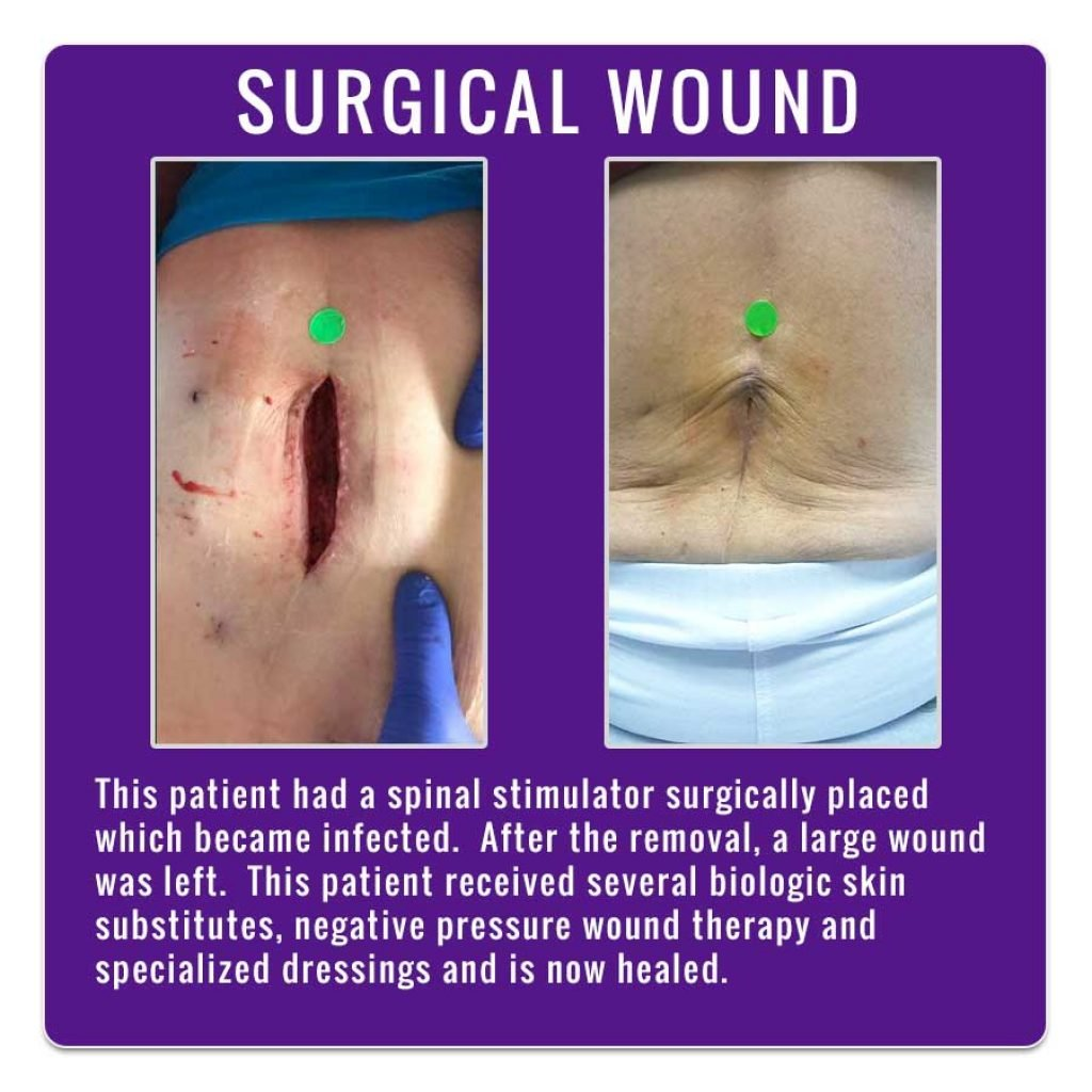 Wound Photos - Valley Wound Care Specialists