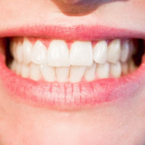 Teeth can be strengthened easily and cheaply