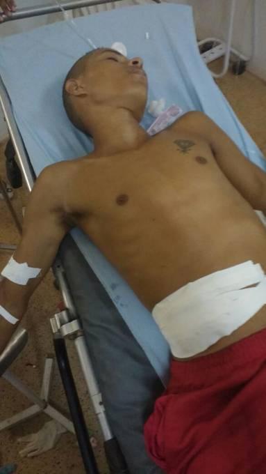 Menor, Valderley Martins Silva de 17 anos, que foi alvejado com um disparo na altura do abdômen.