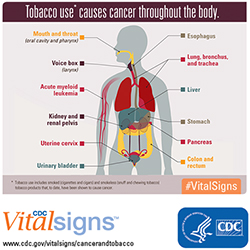 The Great American Smokeout is Today November 15, 2018