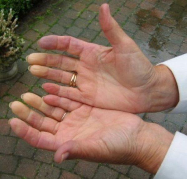 Почему лопаются сосуды на пальцах рук и появляются синяки ...