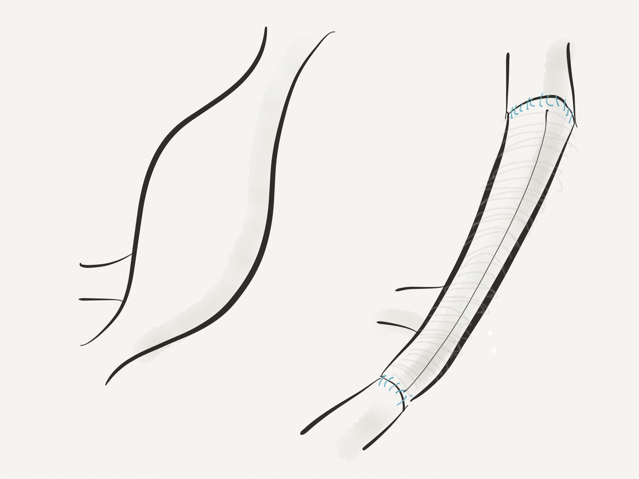 Common Iliac Artery Aneurysm