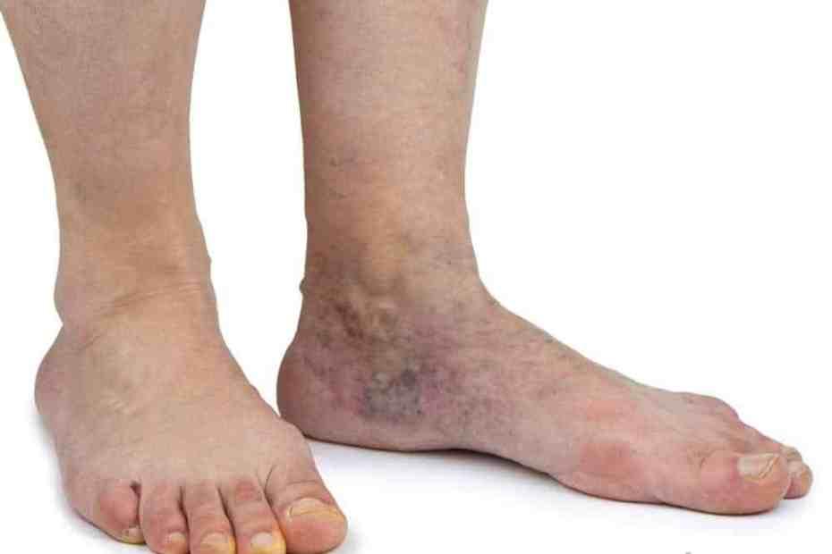 Causas da doença venosa