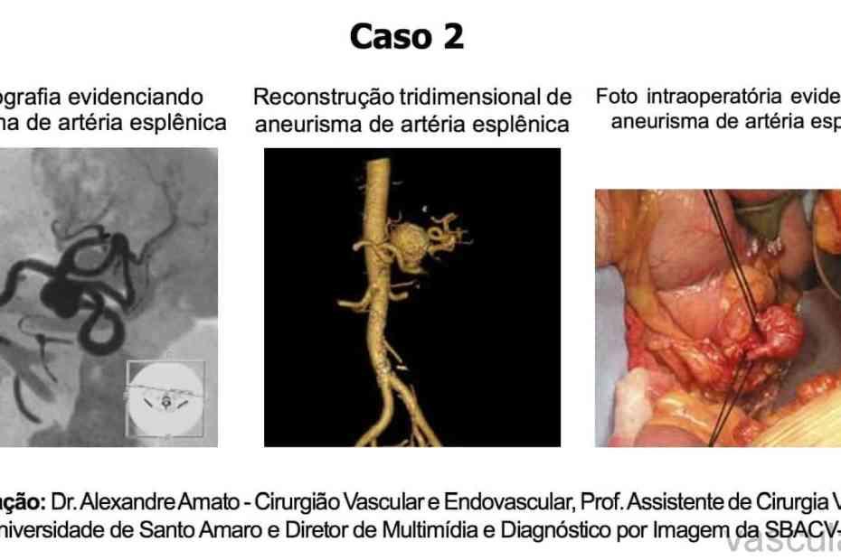Aneurisma de artéria esplênica