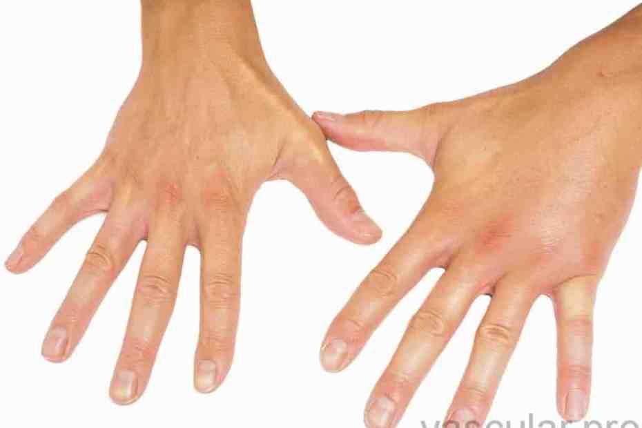 Direita incha mão