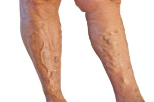 Varicose veins of the lower legs