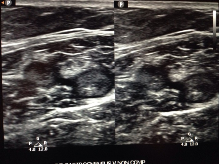 gastrocnemius vein thrombus is very common and should be treated by your physician. Research estimates that they are thrombosed 37% of the time