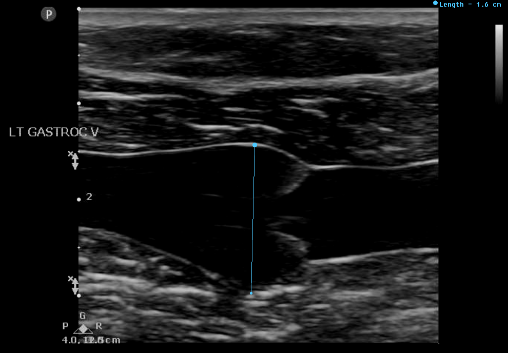 Gastrocnemius Vein Thrombus