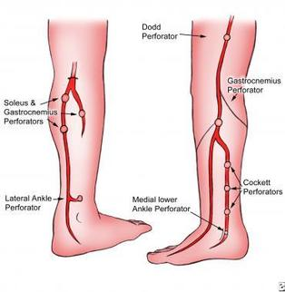 Venous Insufficiency: Background, Anatomy, Pathophysiology