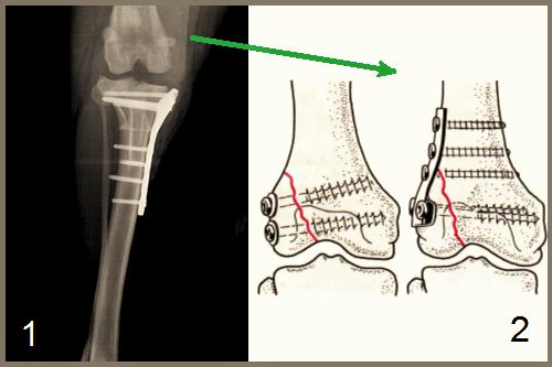 afectarea condilică a tratamentului articulației genunchiului durere la glezna stângă