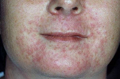 Пероральный дерматит: фото, причины, лечение, народные ...