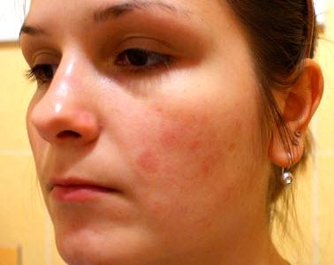 Красные шелушащиеся пятна на лице: фото, причины и лечение ...