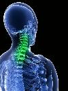 Что такое остеосклероз и как лечить уплотнение костей