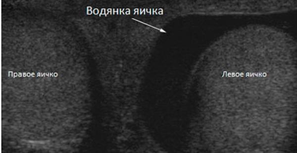 Водянка яичка (гидроцеле) у ребенка и новорожденных ...
