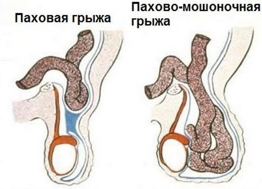 erecție după intervenția chirurgicală cu hidrocel)