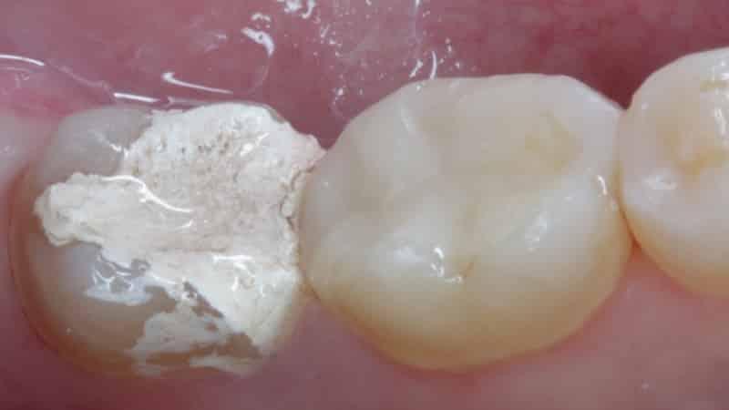 Мышьяк в зубе особенности применения и противопоказания