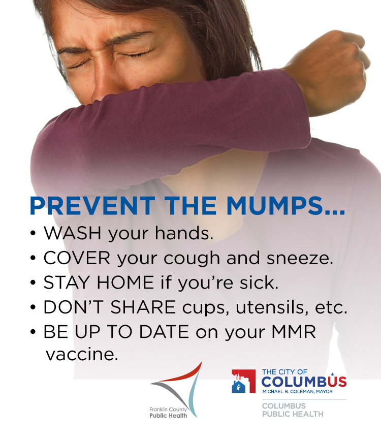 Tips to prevent getting sick with the mumps.