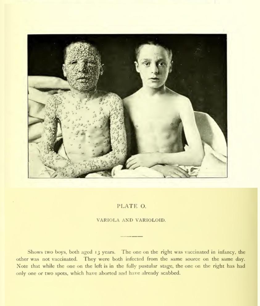 Vaccinated vs unvaccinated with smallpox.