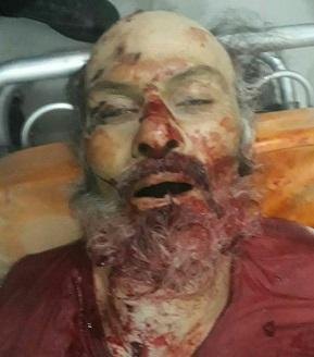 مجهولون يغتالون ثلاث من مسلحي المعارضة السورية في حلب