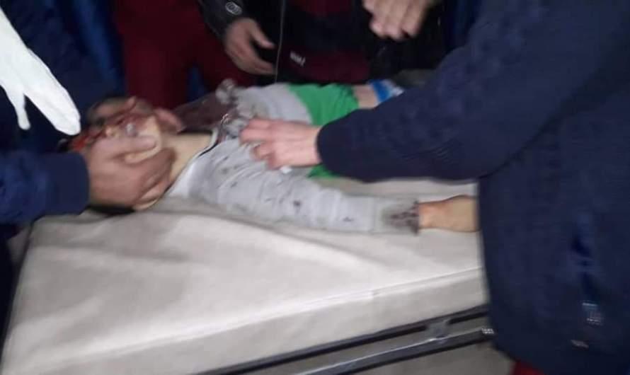 قتلى وجرحى أطفال في قصف تركي استهدف بلدة تلرفعت بريف حلب