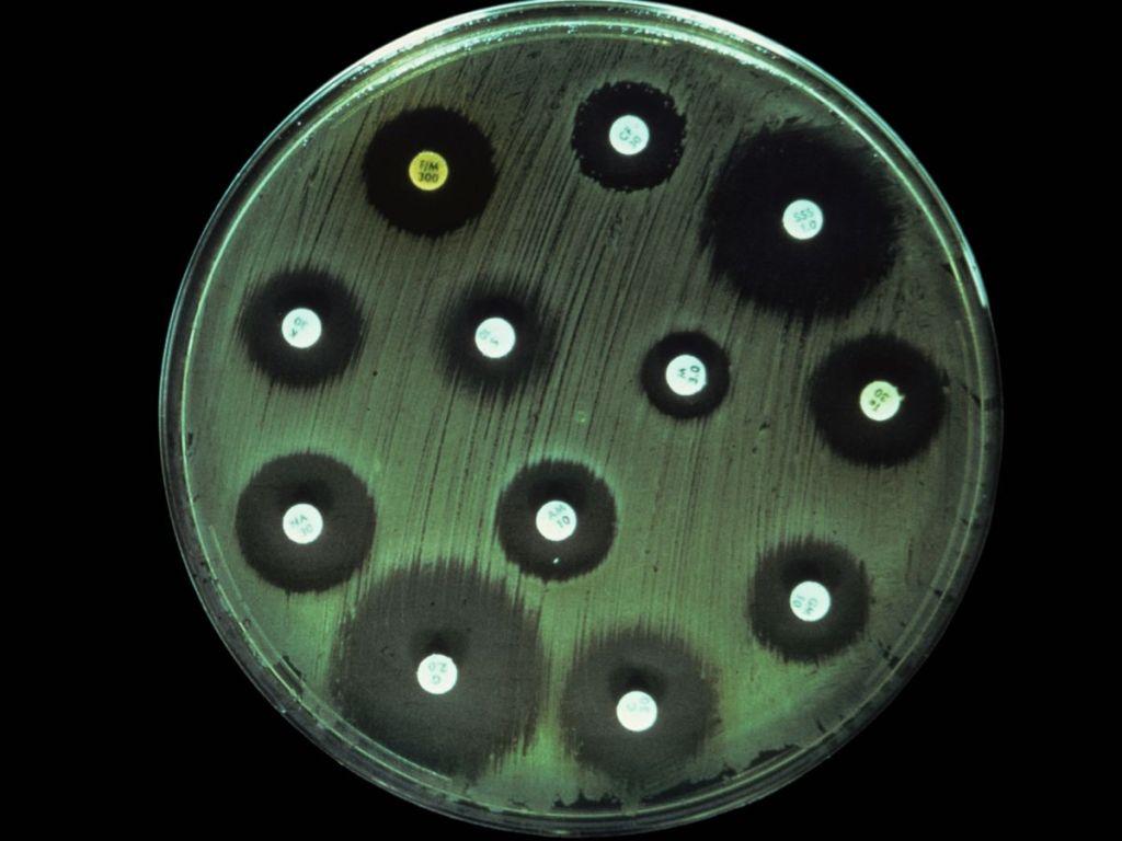 Biele bodky sú antibiotiká, baktérie sa k ním dokážu dostať rôzne blízko, sú voči nim rôzne odolné.