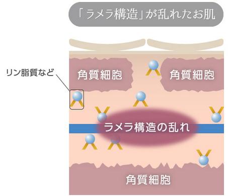 メラメ構造