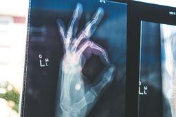 La start-up française AZmed veut optimiser le flux de travail des radiologues grâce à l'IA – L'Usine Digitale