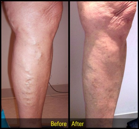 varicose vein treatment glen mills