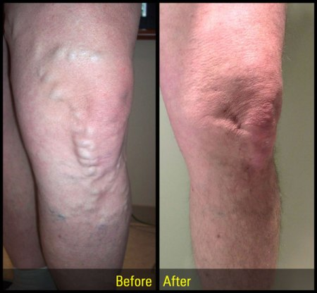 varicose vein treatment results
