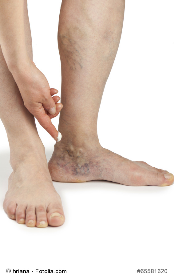 DVT Treatment Glen Mills, PA | Vein Center Brinton Lake