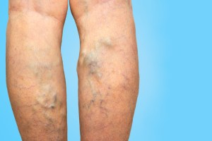 Varicose veins on a female legs on blue background