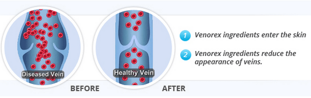 Venorex Varicose Vein Treatment Cream