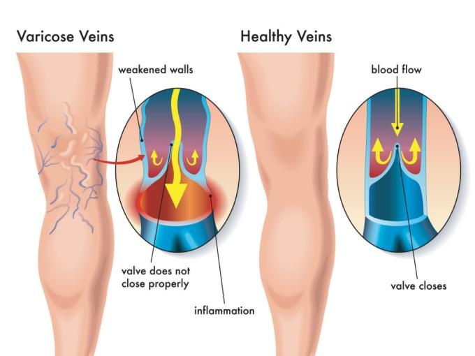 varicose veins diagnosis