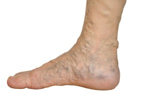 symptoms of varicose veins