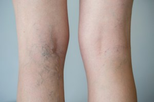 ways to treat varicose veins naturally