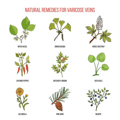 natural ways to get rid of varicose veins