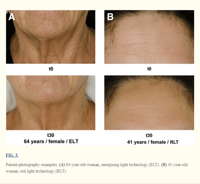 Planet Fitness Total Body Enhancement Before and After Pictures, provided by Wunsch, Alexander, and Karsten Matuschka. at https://www.ncbi.nlm.nih.gov/pmc/articles/PMC3926176/.