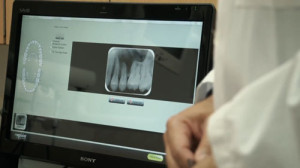 Velopex Apixia Phosphor Plate Dental Digital X-Ray System - Software in Action
