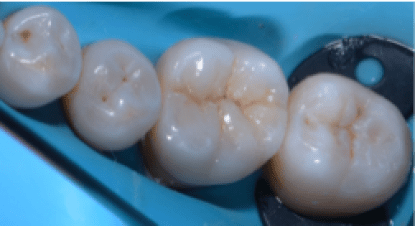 occlusal view showing fantastic bio mimetic integration